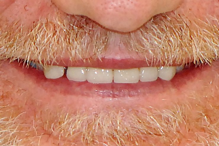 Cosmetic & Reconstructive Dentistry Perth - Centre for Prosthodontics